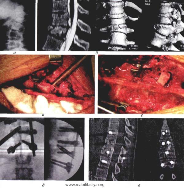 Стеноз позвоночного канала после операции